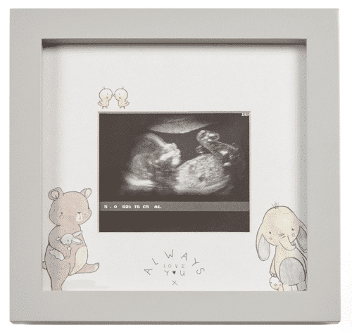 an image of an ultrasound scan frame for new parents